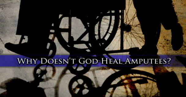 why-doesnt-god-heal-amputees