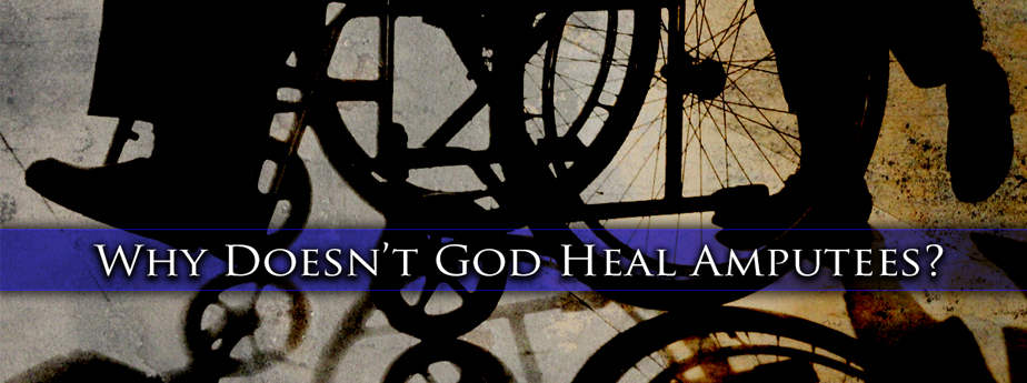Why Doesn't God Heal Amputees?